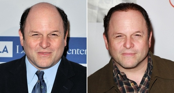 What would Jeremy Piven do? Jason Alexander comes clean about his new hair